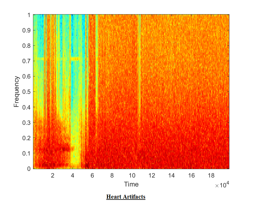 Heart Sound detection